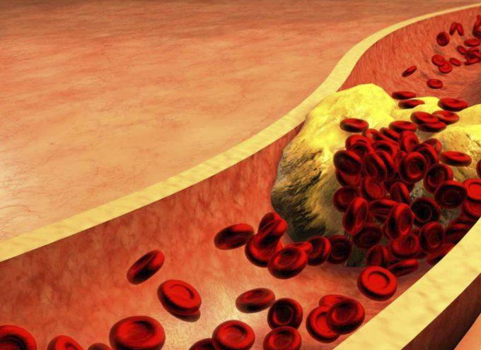 Colesterol alto : hipercolesteronemia