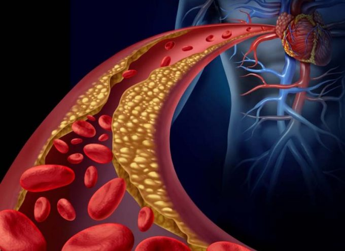 Arterioesclerosis y aterosclerosis
