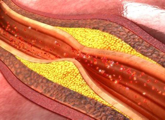 Esclerosis lateral amiotrófica o ELA