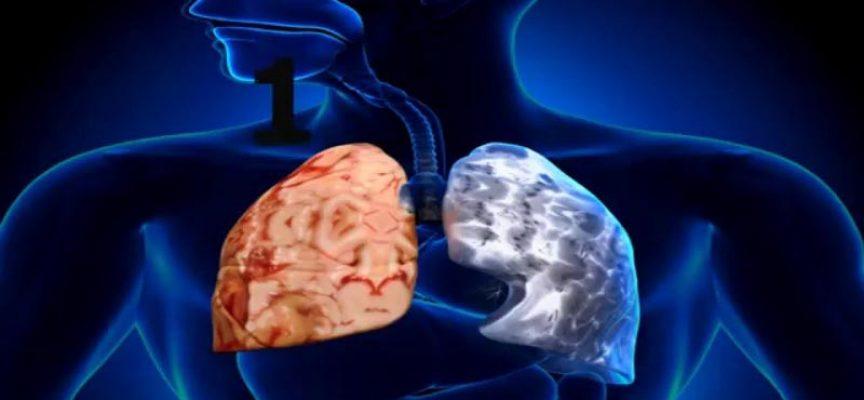 Epoc :  enfermedad obstructiva crónica