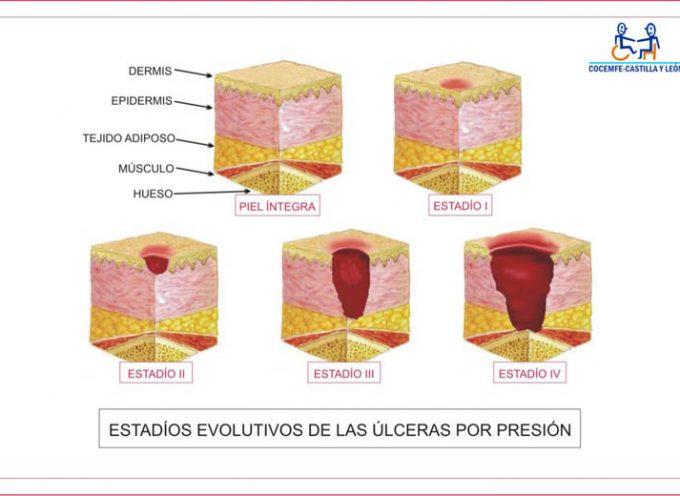 Úlceras por decúbito