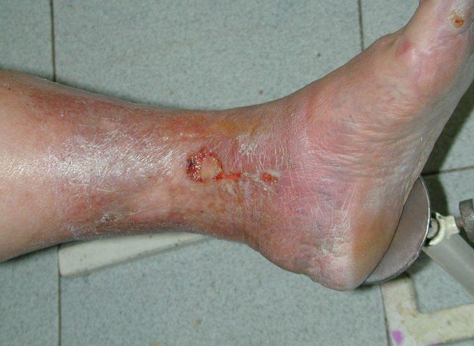 Úlceras en las piernas