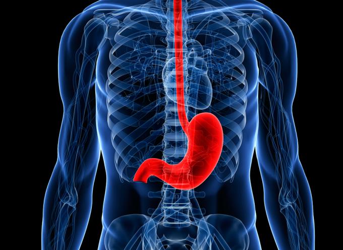 Cáncer de estómago