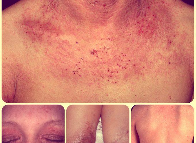 Las muchas formas de dermatitis