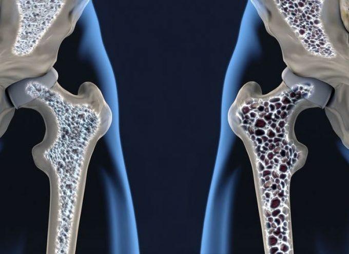 Huesos porosos : la osteoporosis